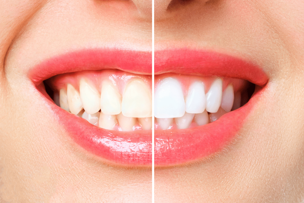 Some important things you need to know before teeth whitening