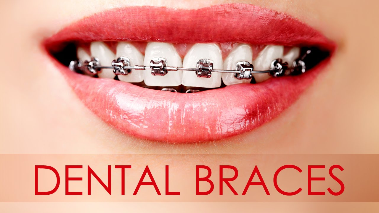 Tips on Getting Cheap Yet Quality Braces